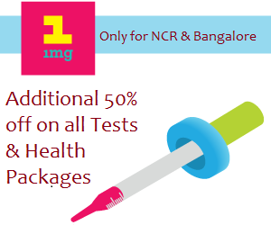 Get Additional 50% off on all lab tests and health packages